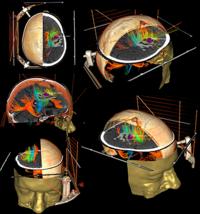 200px-Andras-Jakab-brainconnectivity